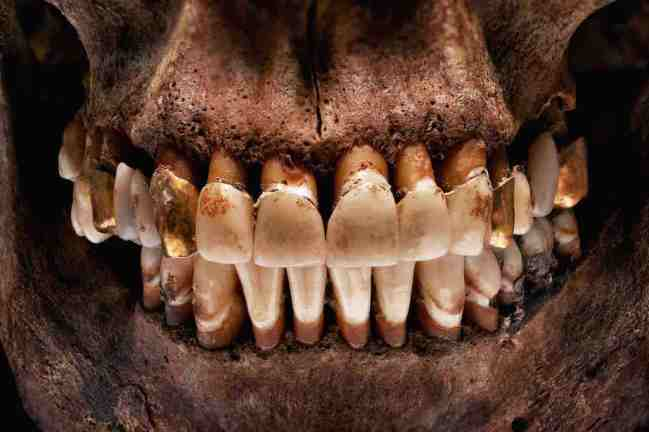 smile_teeth_2013